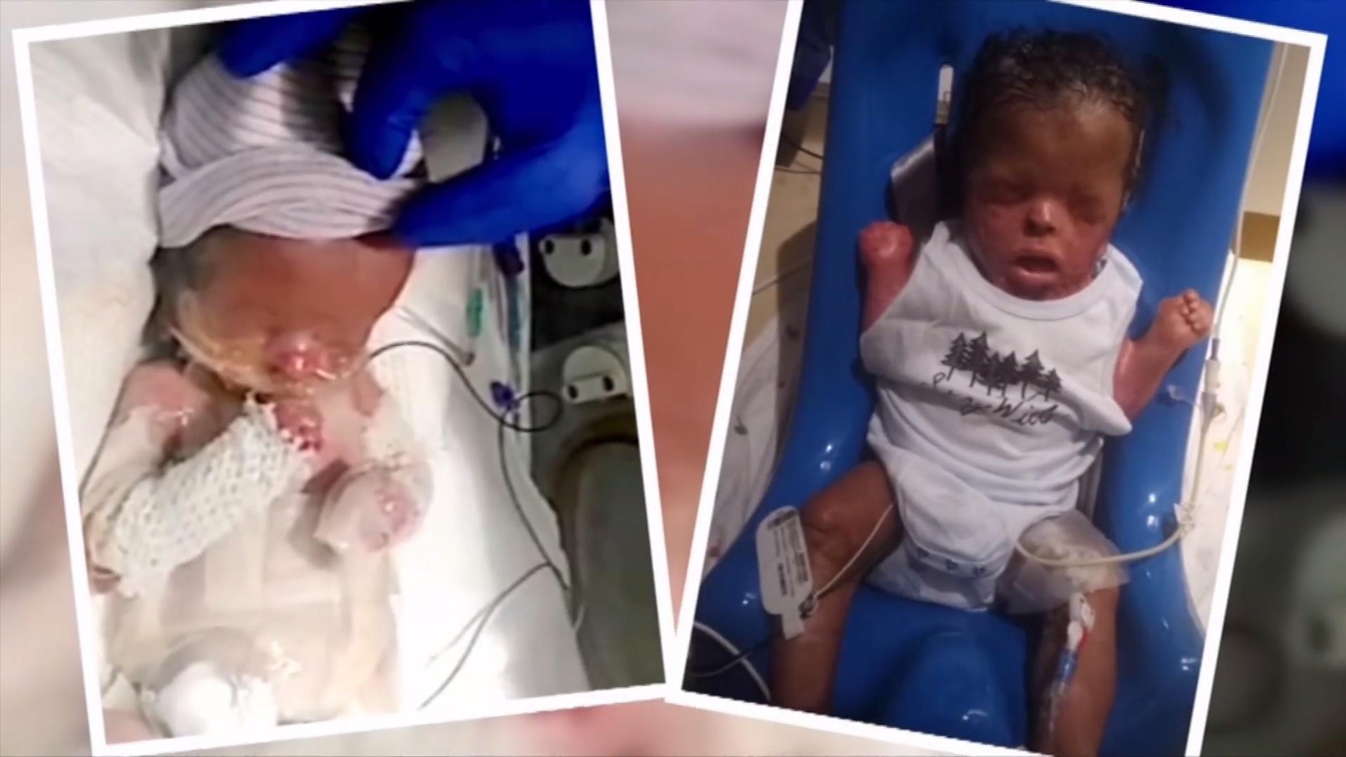 Erste Umarmung 10 Monate Nach Geburt ganzes Baby Atmet Nach Geburt Nicht Selbstständig