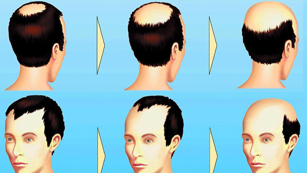 Gesundheit: So Lässt Sich Haarausfall Aufhalten - Welt ganzes Wieviel Haare Hat Der Mensch Auf Dem Kopf