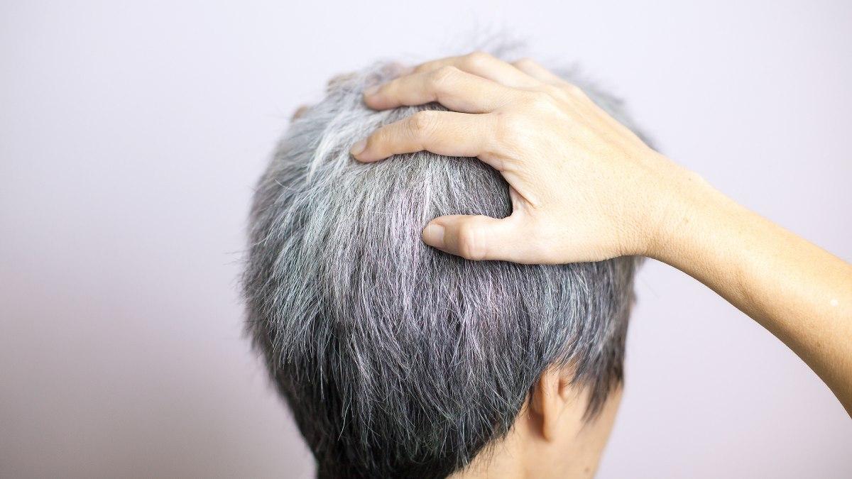 Gibt Es Ein Natürliches Mittel Das Graue Haare Wieder über Haare Färben Wie Das Grau Verschwindet